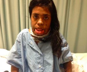 Heldi Surgery