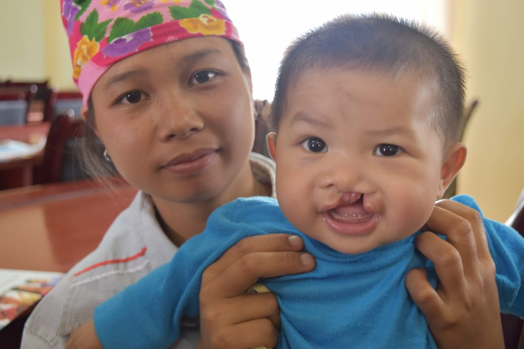 cleft lip vietnam