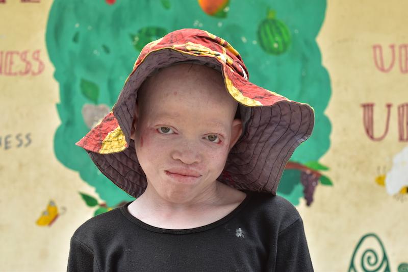 kinderen met albinisme